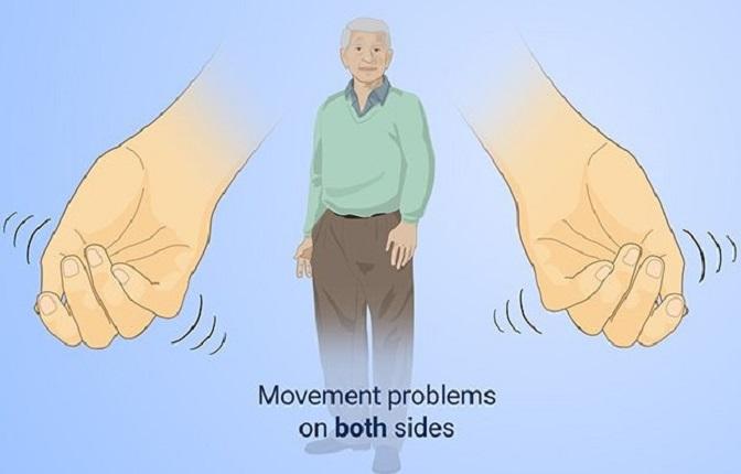 The Parkinson's Protocol Review by Jodi Knap