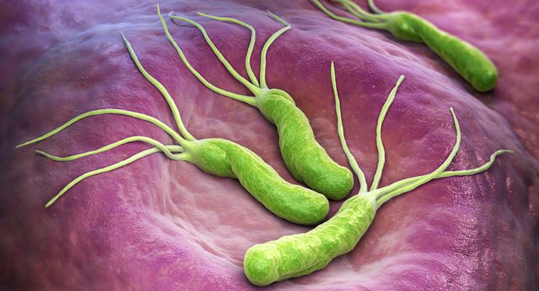 Tackling H. Pylori Infection